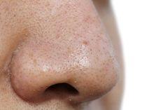5 máscaras faciais para remover os cravos