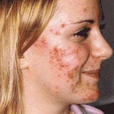 5 Major Causes Of Acne