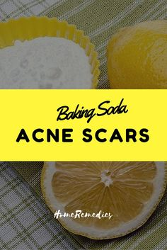 Dark spots acne marks and fade away on pinterest