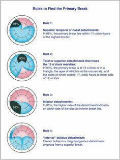 Test Visual, Eye Anatomy, Science Biology, Anatomy And Physiology, Optician, My Job, My Eyes, Clinic, Medicine
