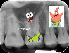 We found Patrick! Tag your friends . . Via @raiosxis _______________________________ www.alldentfor.com facebook.com/alldentfor instagram.com/alldentfor youtube.com/alldentfor twitter.com/alldentfor _______________________________ #alldentfor#dentalstudent #teeth #dental #odontologia #dentistry #braces #dentalschool #dentalassistant #dentalhygienist #dentalhygieneschool #teethwhitening #cosmeticdentistry #cosmeticsurgery #toothfairy #implants #dentures #rootcanal #odonto #smile #whiteteeth…