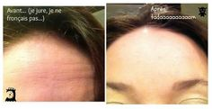 Botox avant après...   Botox before and after