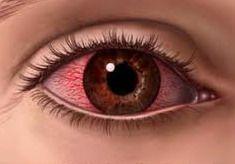 eye remedies