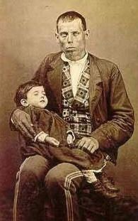Post Mortem Photo Neither Man Or Child Alive.