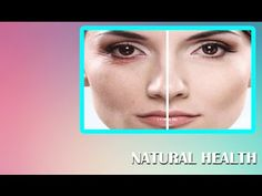 Goodbye Wrinkles These 2 Natural Tonics Will Help You Get Rid of Wrinkle...