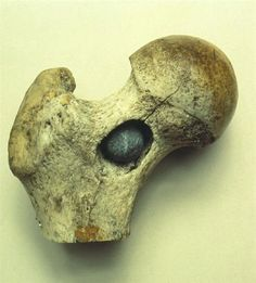 This dry specimen shows the upper end of the right femur of a solider wounded by a musket ball at the Battle of Waterloo, 18th June 1815.    The impact of the musket ball has created a deep cavity in the neck of the femur in which the ball is almost completely embedded. A hairline crack extends up to the head of the femur, while another fracture extends down the bone. via Surgeons' Hall Museum.