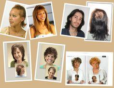 Hair Issues, Hair Loss, Polaroid Film, Losing Hair, Hair Falling Out, Fall Hair