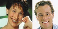[wp_ad_camp_1]  Appareil dentaire adulte, pour quoi un traitement orthodontique