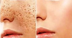 3 days and all open pores will disappear from your skin forever - Pele Limpa Get Rid Of Pores, How To Get Rid Of Acne, Oily Face, Face Skin, Oily Skin, Shrink Pores, Skin Toner, Skin Mask, Acne Remedies