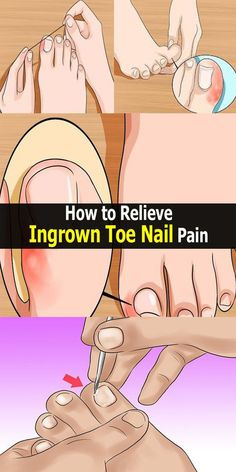How to Relieve Ingrown Toe Nail Pain!