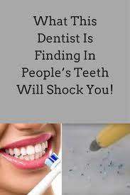 What This Dentist Is Finding In People's Teeth Will Shock You!