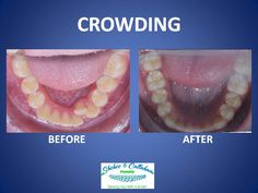 Braces before and after - crowding! My teeth look a lot like that so I'm glad it can be fixed! Lol