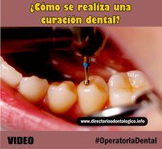 curación-dental