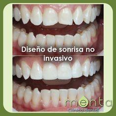 Diseño de sonrisa no invasivo
