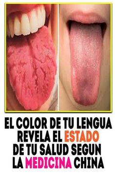 Verrugas en la lengua y garganta