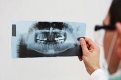 Dental X-Rays and Thyroid Cancer