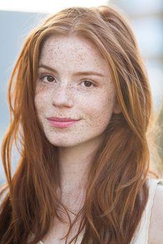 Redheads Be Here - yesgingerfriend:   Klasse Sommersprossen