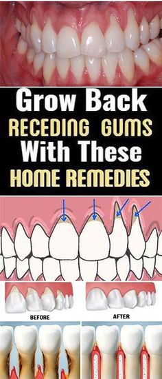 Secret Health Remedies If you are experiencing receding gums then you have found a great article to read. In this article you will find 9 of the best home natural remedies to help grow back your receding gums. Your gums … Dental Health, Oral Health, Dental Care, Teeth Health, Grow Back Receding Gums, Home Remedies, Natural Remedies, Health Remedies, Natural Treatments