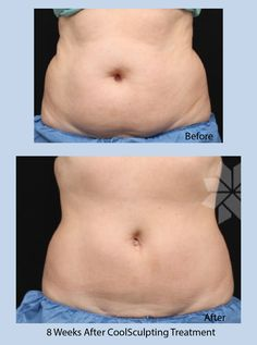 #CoolSculpting Before & After http://www.tachmesmd.com/resources/coolsculpting/