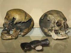 Skulls, of Abby and Andrew Borden.