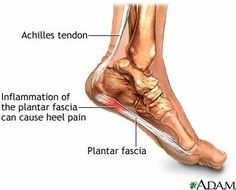 Plantar fasciitis is an inflammation of the plantar fascia, the tissue on the sole of the foot. It is often caused by overuse of the plantar fascia or arch tendon of the foot. The two ends of the t…