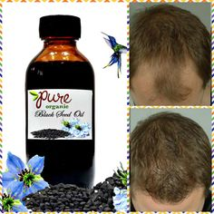 4 Remedies for Thicker Hair - Everyday Remedy Organic Black Seed Oil, Hair Growth For Men, Hair Remedies For Growth, Oil Benefits, Grow Hair, Hair Loss, Male Hair, Healing, Pure Products