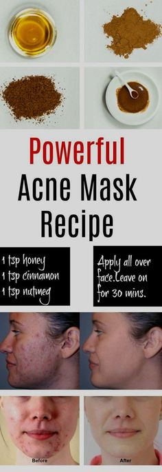 Eliminate Your Acne-Remedies - Natural Acne Mask - Free Presentation Reveals 1 Unusual Tip to Eliminate Your Acne Forever and Gain Beautiful Clear Skin In Days - Guaranteed! Home Remedies For Pimples, Skin Care Remedies, Cure For Pimples, Homemade Acne Mask, Homemade Acne Remedies, Natural Acne Remedies, Homemade Acne Treatment, Overnight Acne Remedies Diy, Homemade Facials For Acne