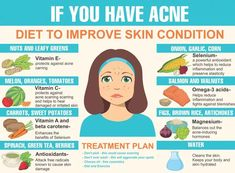You can fight acne with the right foods! Click now to see the complete list of foods that prevent acne. You can fight acne with the right foods! Click now to see the complete list of foods that prevent acne. Clear Skin Fast, Clear Skin Tips, Foods To Clear Acne, How To Clear Skin, Clear Skin Routine, Acne Skin, Acne Scars, Acne Face, Oily Face