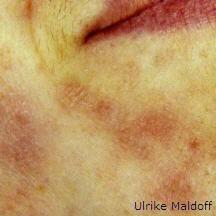 Durch eine gute Hautpflege kann man die Haut wieder in Ordnung bekommen. Vor der Behandlung http://www.ulrike-maldoff.de/gesichtspflege/bionomepflege.html