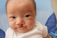 cleft lip in a small baby