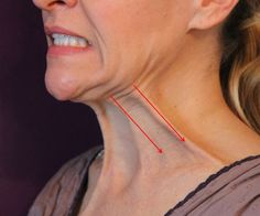 Say hello to your jaw line again: Exercises that guarantee riddance of the…