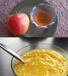 10 Easy Homemade Acne Facials ! Treat your acne with these home acne face masks naturally ! http://www.feminiya.com/10-easy-homemade-acne-facials/