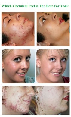 A chemical peel is a technique used to improve the appearance of the skin on the face, neck or hands. A chemical solution is applied to the skin that causes it to exfoliate and eventually peel off. The new, regenerated skin is usually smoother and less wrinkled than the old skin. The new skin is also temporarily more sensitive to the sun. There are three basic types of chemical peels: