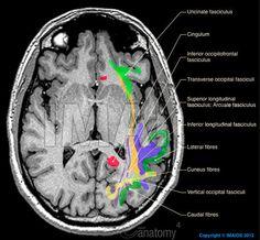 Brain - White matter : Association fibres of telencephalon, Superior longitudinal fasciculus; Arcuate fasciculus