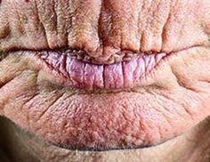 Besser Als Botox?
