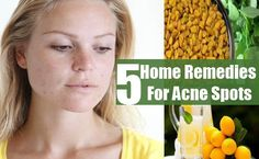 Skin Acne Remedies Acne as well as Pimples Remedies. Natural means to eliminate and also protect against Acne. Cystic Acne Remedies, Natural Acne Remedies, Home Remedies For Acne, Skin Care Remedies, Health Remedies, Homemade Acne Treatment, Natural Acne Treatment, Scar Treatment, Skin Treatments