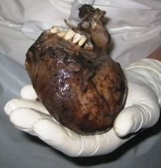 """Teeth growing on a heart. A """"dermoid cyst"""" of the ovary is a tumor, usually benign, in the ovary that typically contains a diversity of . Weird Science, Medical Science, Vanishing Twin Syndrome, Greek Monsters, Dermoid Cyst, Human Oddities, Unusual Things, Strange Things, Strange Places"""