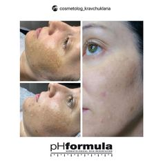 Excellent hyperpigmentation skin resurfacing results for our pHformula skin specialists in Russia. Thank you for sharing Skin Resurfacing, Skin Specialist, Russia