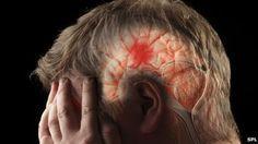 """El accidente cerebro-vascular (ACV), es una enfermedad también conocida con el nombre de """"ictus"""" o """"derrame cerebral"""" y se cobra apro..."""