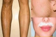 Remove Unwanted Facial Hair, Unwanted Hair, Remove Public Hair, Wax Hair Removal, Soda Recipe, Beauty Recipe, Models, Skin Care Tips, Skin Whitening