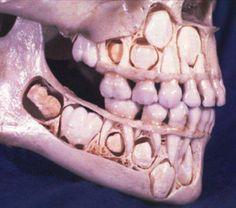 Gambar Foto tengkorak anak-anak dengan penampakan rahang sebelum gigi susu yang hilang