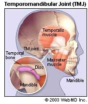 The cause of TMJ disorder/syndrome is not clear, but dentists believe that symptoms arise from problems with the muscles of the jaw or with the parts of the joint itself.      Injury to the jaw, temporomandibular joint, or muscles of the head and neck – such as from a heavy blow or whiplash – can cause TMD. Other possible causes include:  Grinding or clenching the teeth, which puts a lot of pressure on the TMJ Dislocation of the soft cushion or disc between the ball and socket