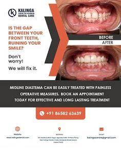 Bring back your teeth together with midline diastema treatment! Using a simple painless diastema-closure operation and post-operative kit can help distribute evenly the midline spacing. However, not all diastemas can be treated the same. Dentist Near Me, Best Dentist, Dental Care For Kids, Front Teeth, Appointments, Clinic, No Worries, Treats, Closure