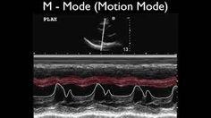 Ultrasound Physics Scanning Modes M Mode Ultrasound Physics, Pandora, Cap, Google Search, Fashion Styles, Baseball Cap