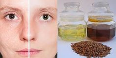 Skin care tips and ideas : Acne and Rose Hip Oil the 100% All Natural Therapy