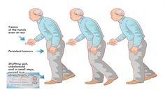Parkinsonismo o Parkinson Plus