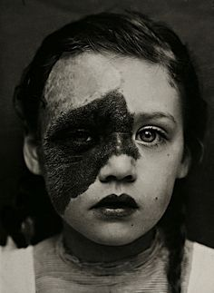 Pretty girl with a birthmark covering a large portion of her face.