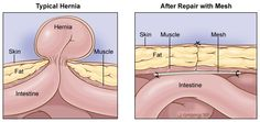 Depiction of Hernia types and Hernia repairs.
