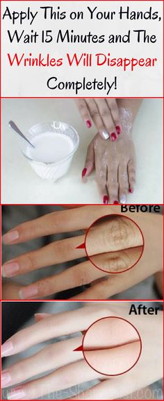 Apply This on Your Hands, Wait 15 Minutes And The Wrinkles Will Disappear Completely! – Body 4 Fitness Informations About Apply This on Your Hands, Wait 15 Minutes And The Wrinkles Will Disappear Comp Beauty Care, Diy Beauty, Beauty Skin, Beauty Hacks, Beauty Ideas, Face Beauty, Beauty Makeup, Hand Care, Tips Belleza