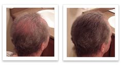 Widening part line? here is one easy solution Fuller Hair, Thinning Hair, Hair Looks, Hair Cuts, Watch, Easy, Projects, Haircuts